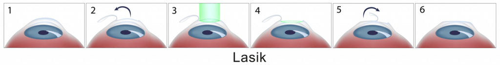 technique lasik