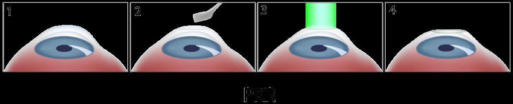 Technique PKR